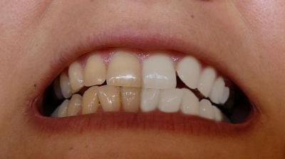 Bělení zubů v Gimpu #Obrázek